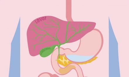 Duodenitis, ontstoken twaalfvingerige darm